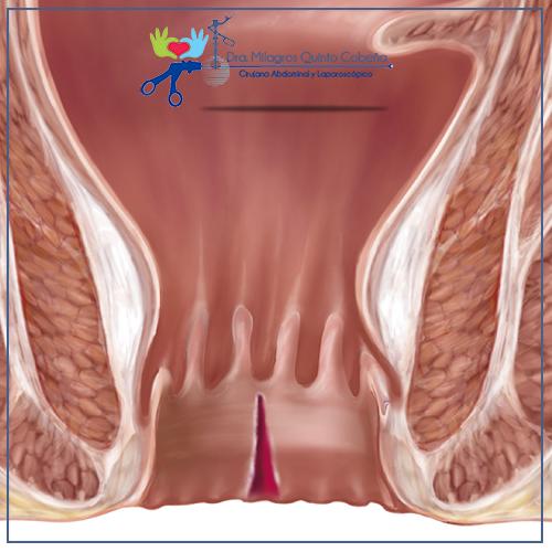 fisura anal